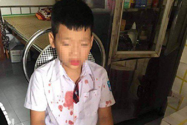 """Bé trai lớp 1 bị người đàn ông hành hung để """"trả thù"""" đang hoảng loạn, không muốn đến trường học"""
